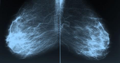 """Warum Heidelberger Forscher beim Test auf Brustkrebs doch keine """"Weltsensation"""" bieten können"""